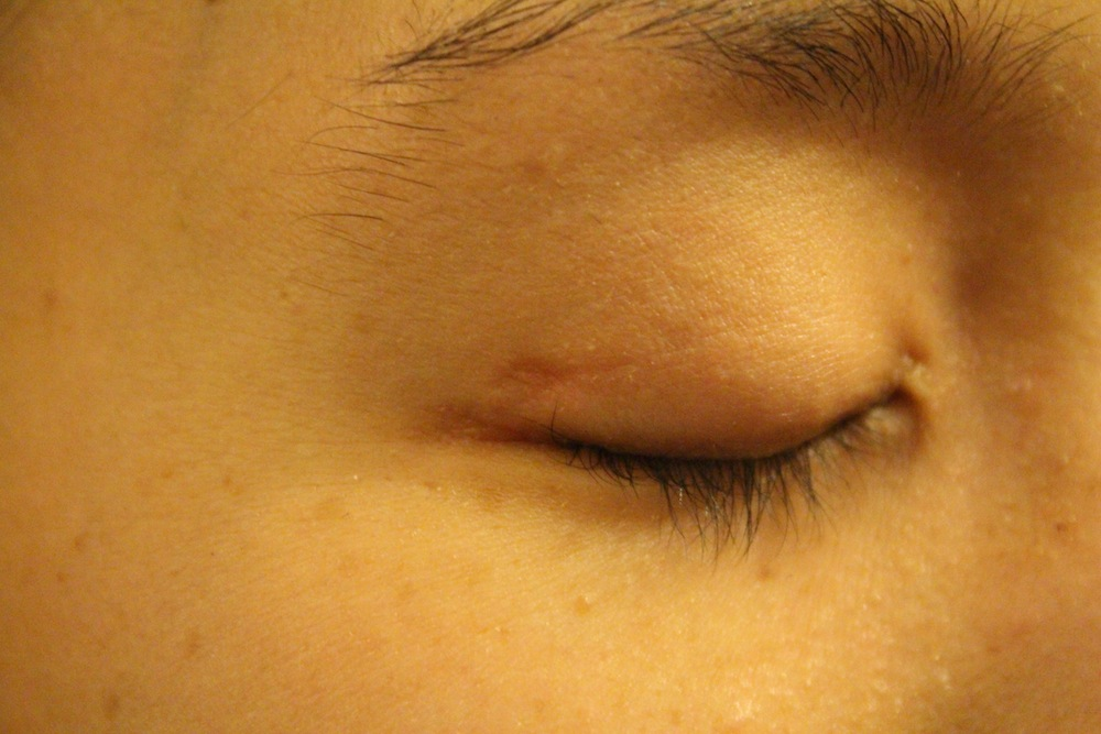 Closed eyelid with small scar